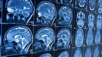 Radiološka dijagnostika i njezin utjecaj na zdravlje ljudi | Domoljubni portal CM | Zdravlje
